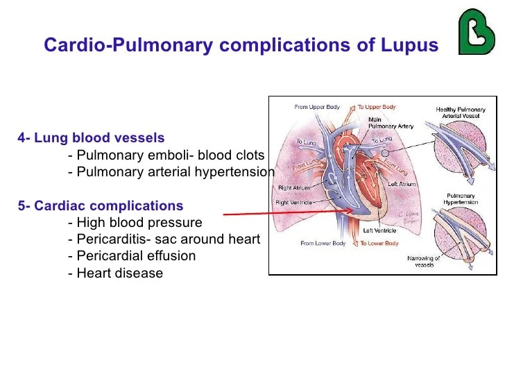 Lupus And Lung Inflammation
