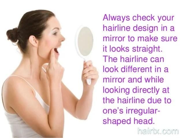 dallas male hairline design