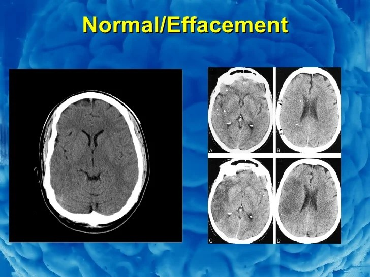 Basal Cisterns Anatomy Brain
