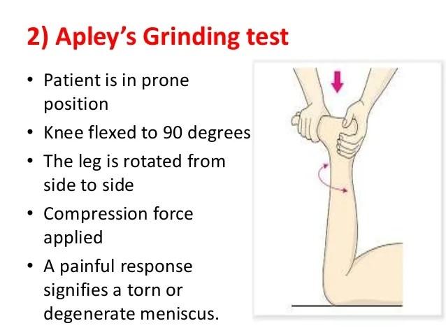 Cyst Degenerative Knee