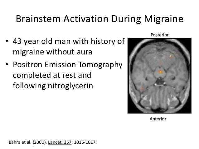 Pathophysiology Migraine  Headache