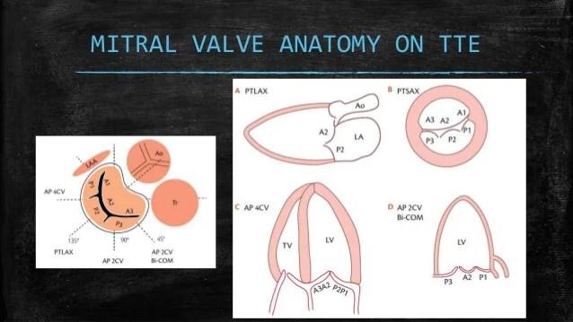 Valve Prolapse Anatomy Mitral