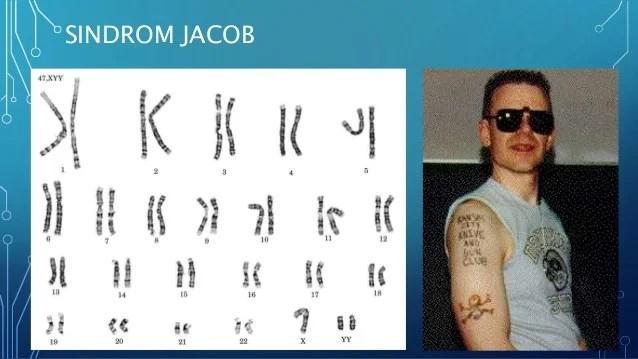 Mutasi Kromosom Materi Kelas Xii Sma
