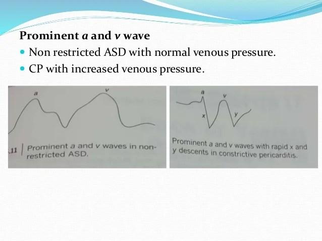 Jugular venous pressure