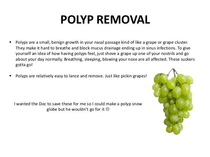 Sinus Nasal Polyps Removal