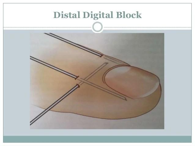 nail biopsy