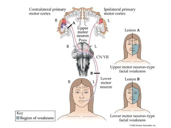 Neurological Examination in the Emergency Room