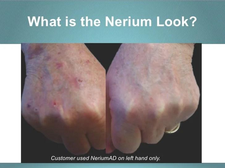 Nerium Business Opportunity Presentation