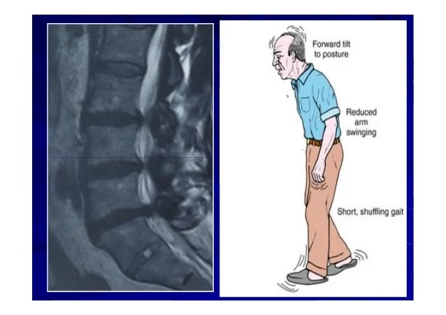 New trend in the managment of lumbar canal stenosis niles