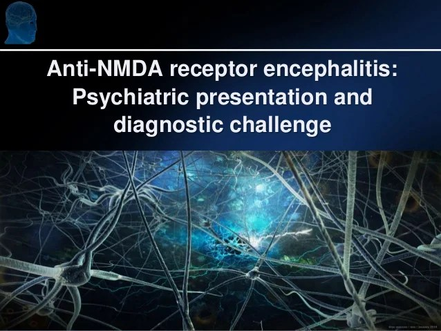 Anti-NMDA receptor encephalitis: Psychiatric presentation and diagnos…