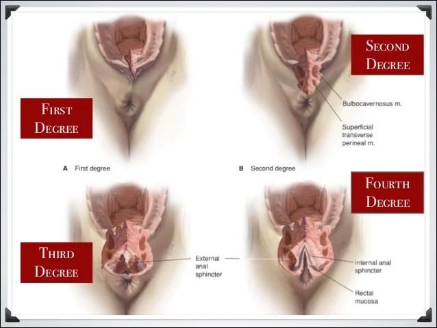 laceration of the vagina. ile ilgili görsel sonucu