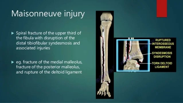 Ankle fractures and dislocations different types of for Type de maison neuve