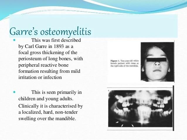 Chronic Sclerosing Osteomyelitis Mandible