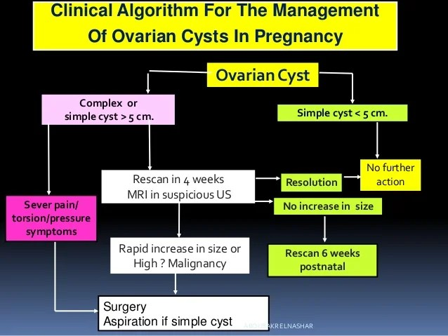 Cm Ovarian 62 Cyst