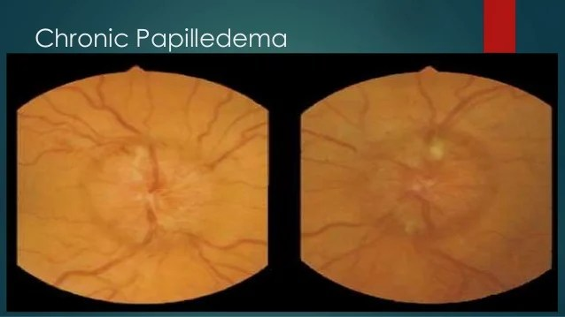 Pseudotumor Optic Nerve