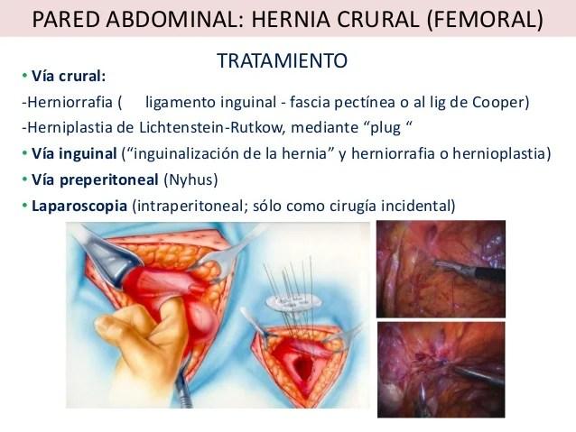 Hernia Femoral Sintomas