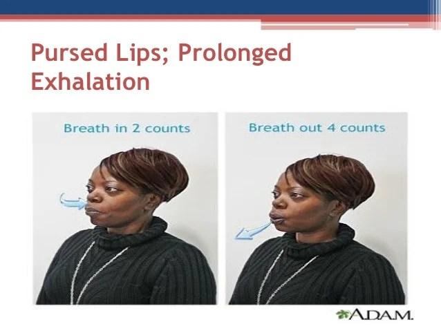 ECI COPD Course Lecture 3