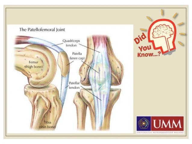 Patellofemoral Pain Syndrome Pfps