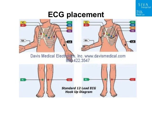 4 lead ekg placement diagram general electric washer patient monitor ppt. siva hospital nagarcoil