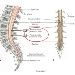 Lumbar Puncture Diagram 4 Wire Trailer Wiring Pediatric 8 9