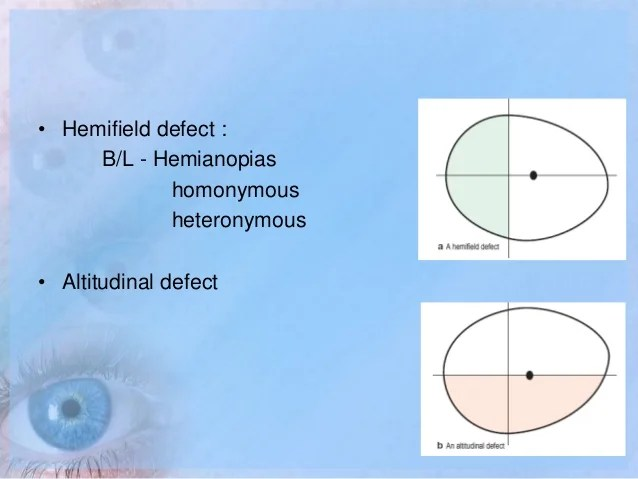 also visual field examination rh slideshare