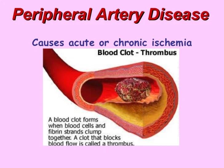 Peripheral Artery Disease - BMH/Tele