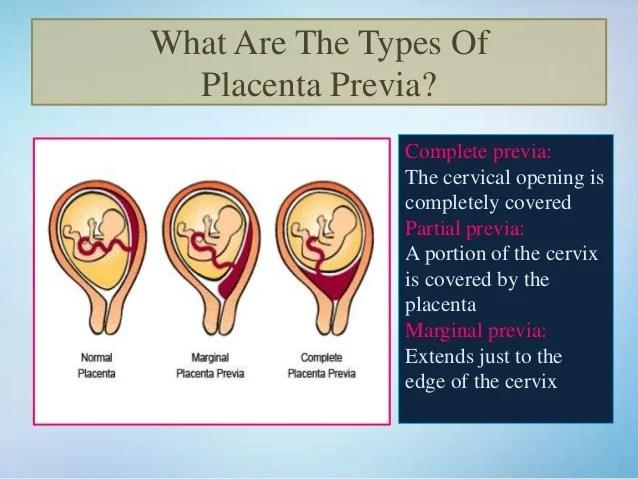 Placenta Previa- Symptoms Causes & Treatment