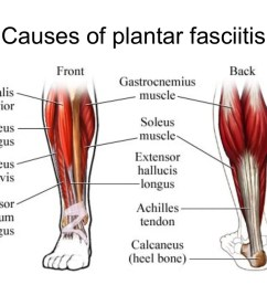 exactly what causes plantar fasciitis  [ 1024 x 768 Pixel ]