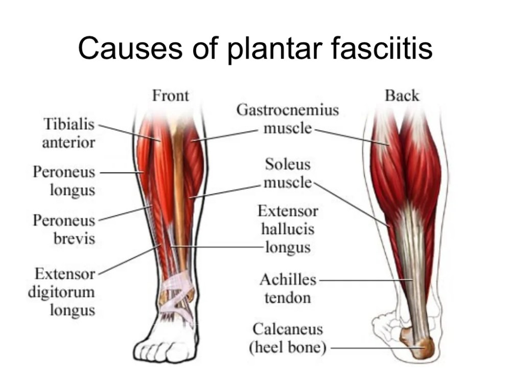 medium resolution of exactly what causes plantar fasciitis