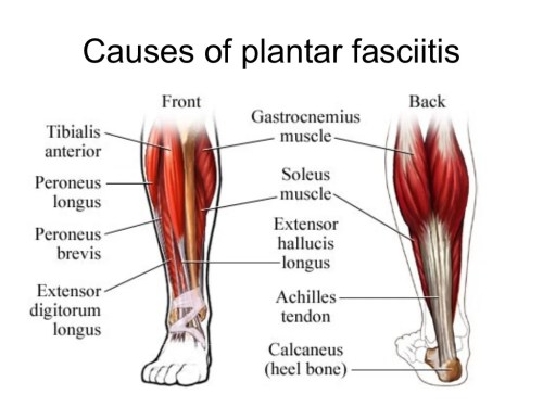 small resolution of exactly what causes plantar fasciitis