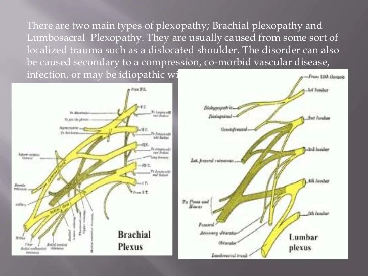 spinal cord and nerves diagram winch reversing solenoid wiring plexopathy
