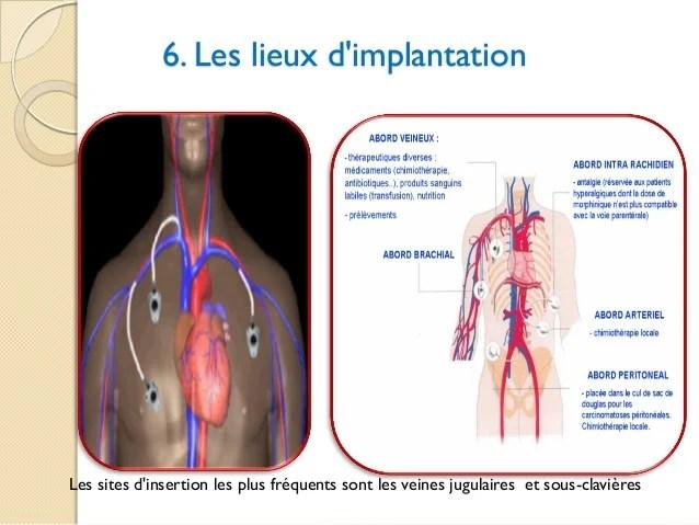 La Chambre Implantable Pdf