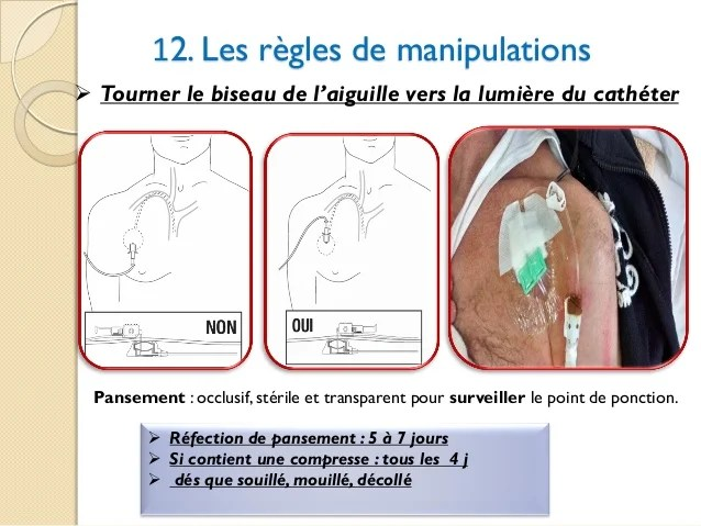 chambre implantable chimiotherapie