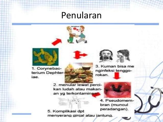 Image Result For Difteri Adalah