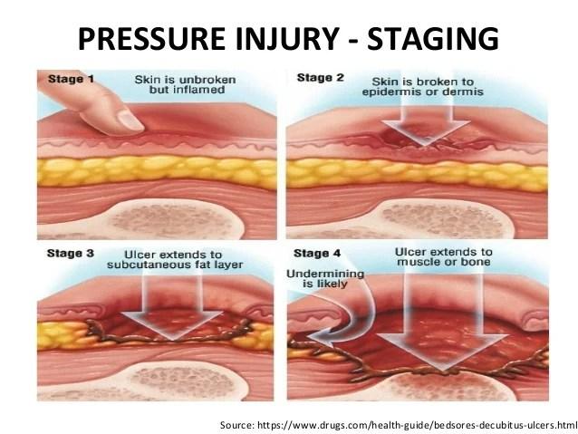 Pressure Injury