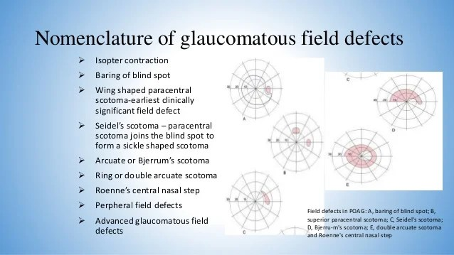 also primary open angle glaucoma rh slideshare