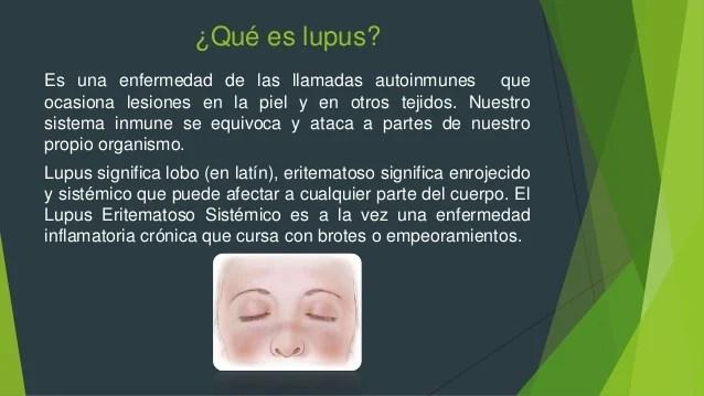 Problemas neumonia-y-lupus