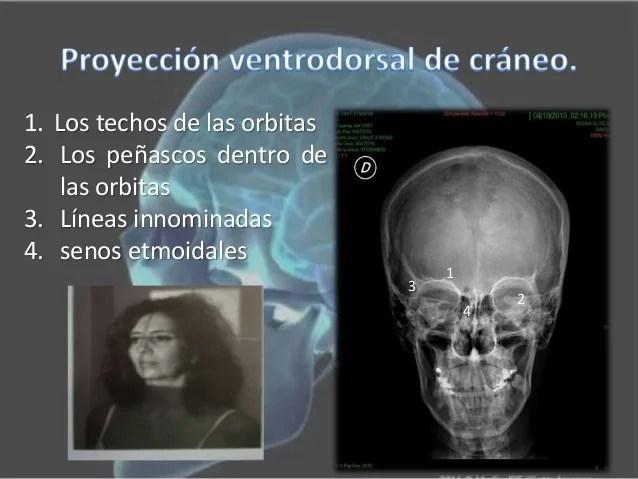 Proyecciones radiolgicas del crneo