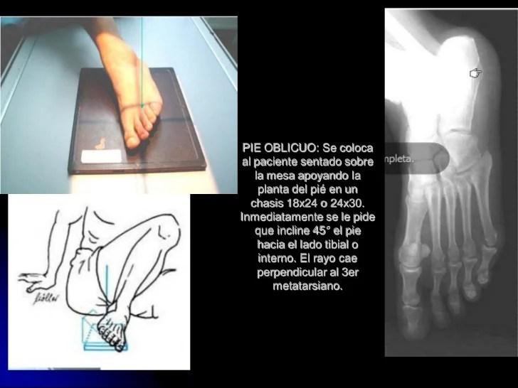 Radioanatomia del pie y tobillo