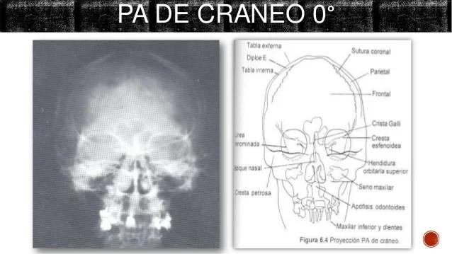 Radiografias de craneo  cara