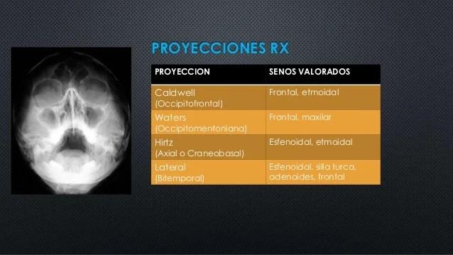 Radiologia e imagen de nariz y spn