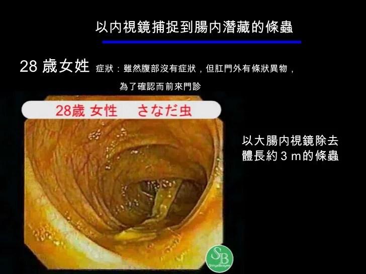 你了解大腸結構及大腸癌
