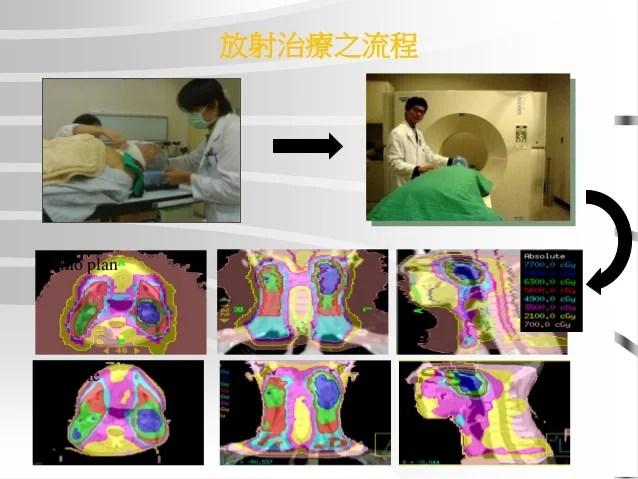 放射線治療的併發癥 謝忱希