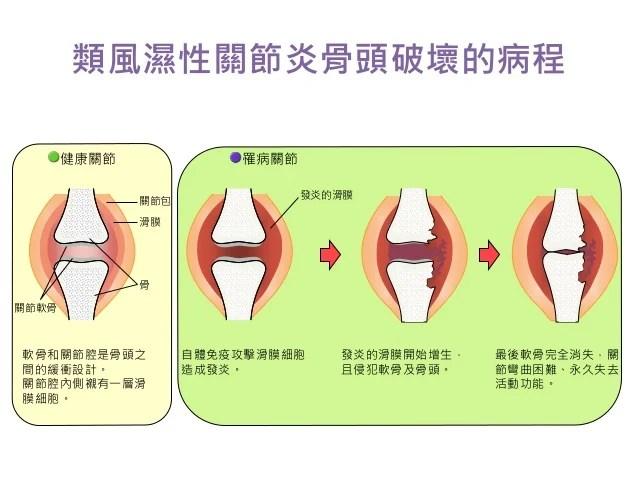 類風濕性關節炎治療策略管理