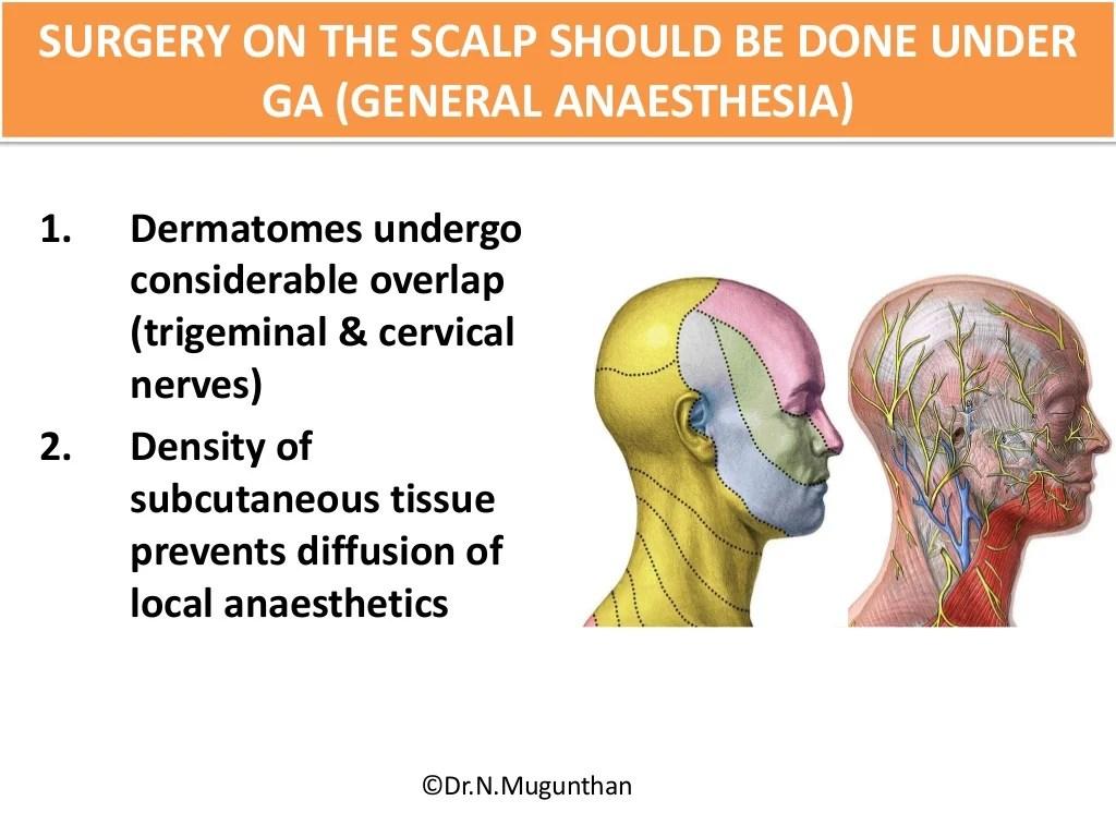 hight resolution of scalp lymph node diagram