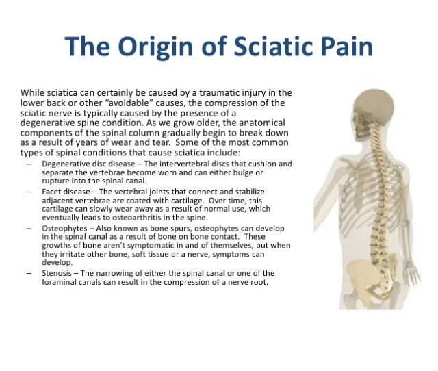 The Origin Of Sciatic
