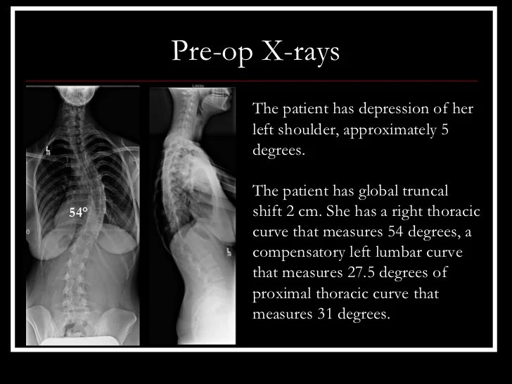 Case Review #22: 21 year old with Progressive Adolescent ...