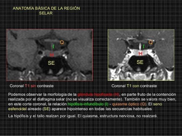 Anatomia de region selar