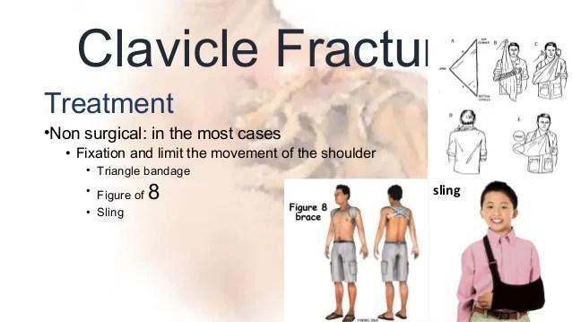 Figure 8 Sling Broken Collarbone