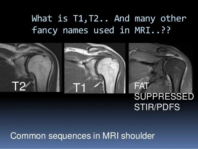 MRI OF SHOULDER INJURY